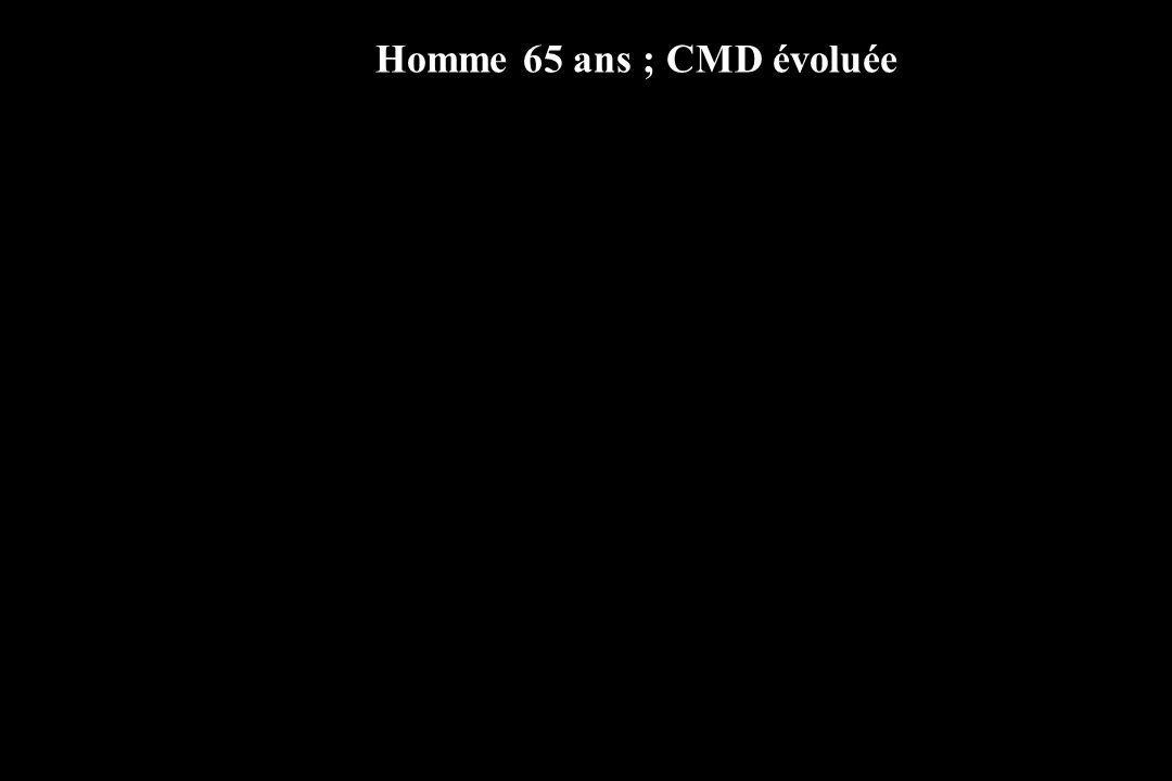 Homme 65 ans ; CMD évoluée