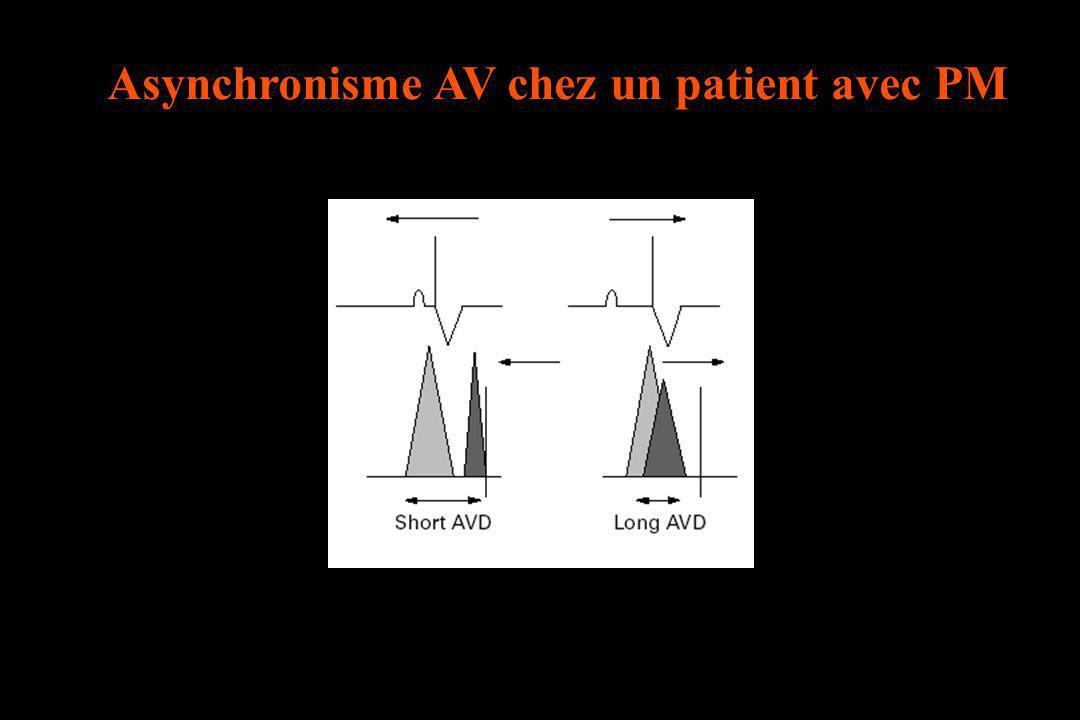 Asynchronisme AV chez un patient avec PM