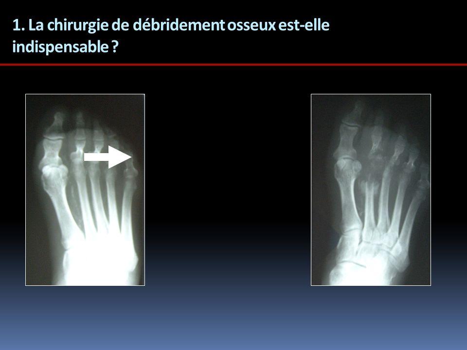 1. La chirurgie de débridement osseux est-elle indispensable ?