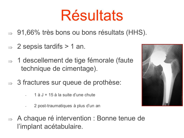 Reprises acétabulaires 4 / 144 arthroplasties (2,7%) 1 bascule précoce (< 1 mois) : Nouveau fraisage + Repositionnement Evolution favorable au plus long recul Un descellement avec ostéolyse du cotyle (J + 40 mois)