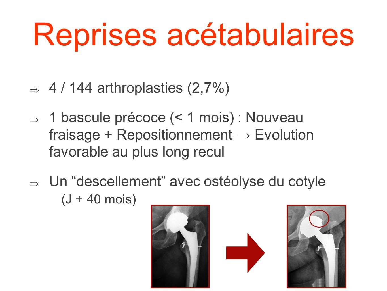 Reprises acétabulaires 4 / 144 arthroplasties (2,7%) 1 bascule précoce (< 1 mois) : Nouveau fraisage + Repositionnement Evolution favorable au plus lo
