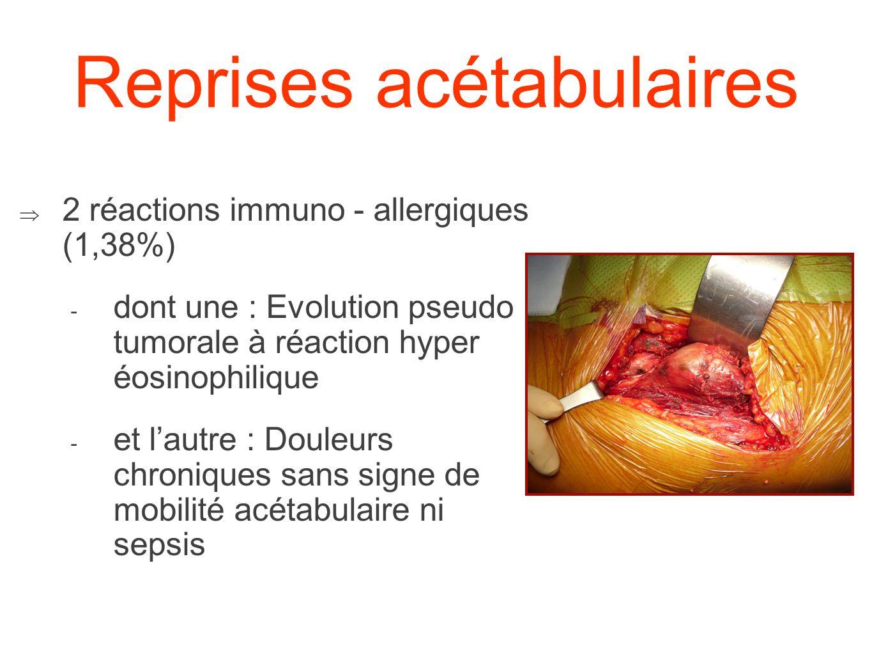 Reprises acétabulaires 2 réactions immuno - allergiques (1,38%) - dont une : Evolution pseudo tumorale à réaction hyper éosinophilique - et lautre : D