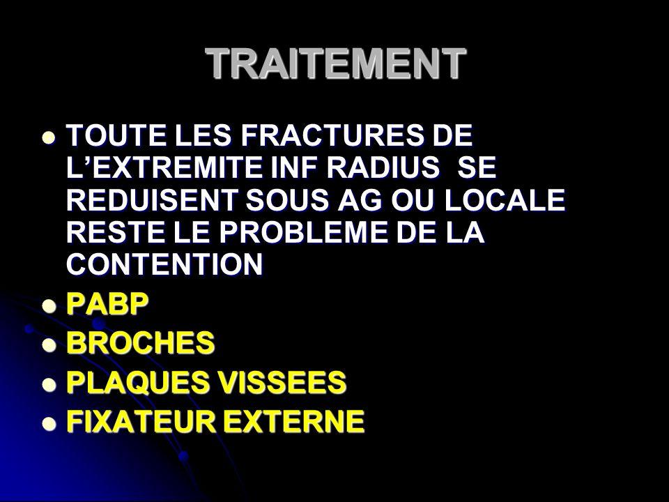 TRAITEMENT TOUTE LES FRACTURES DE LEXTREMITE INF RADIUS SE REDUISENT SOUS AG OU LOCALE RESTE LE PROBLEME DE LA CONTENTION TOUTE LES FRACTURES DE LEXTR