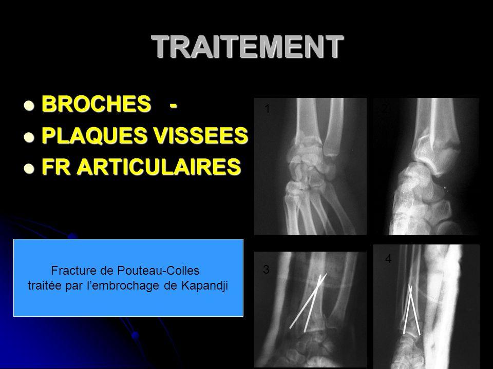 TRAITEMENT BROCHES - BROCHES - PLAQUES VISSEES PLAQUES VISSEES FR ARTICULAIRES FR ARTICULAIRES 21 3 4 Fracture de Pouteau-Colles traitée par lembrocha