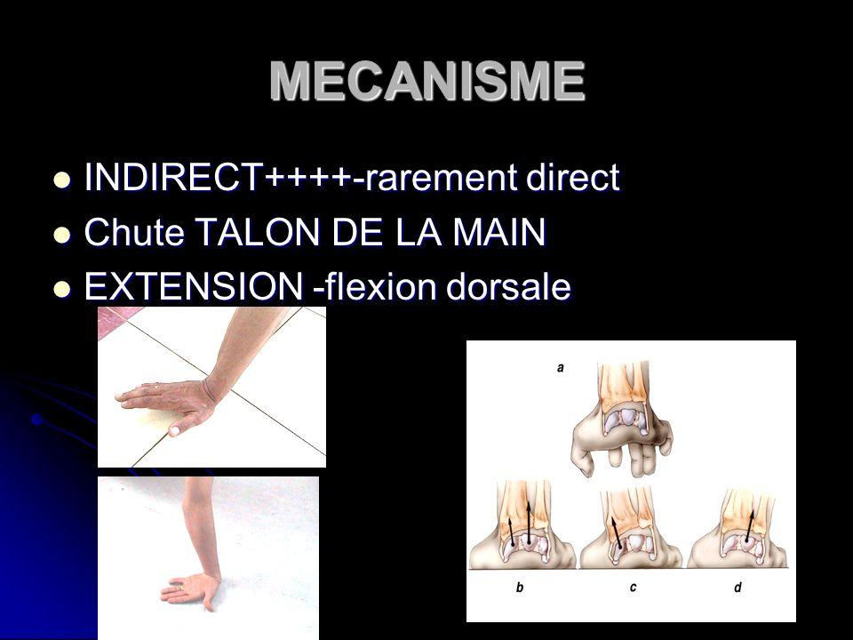 MECANISME INDIRECT++++-rarement direct INDIRECT++++-rarement direct Chute TALON DE LA MAIN Chute TALON DE LA MAIN EXTENSION -flexion dorsale EXTENSION