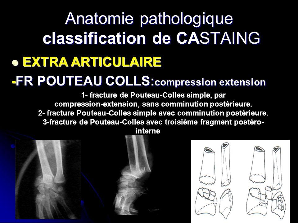 Anatomie pathologique classification de CASTAING EXTRA ARTICULAIRE EXTRA ARTICULAIRE -FR POUTEAU COLLS: compression extension 1- fracture de Pouteau-C
