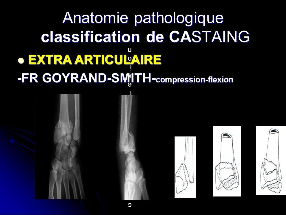 EXTRA ARTICULAIRE EXTRA ARTICULAIRE -FR GOYRAND-SMITH- compression-flexion Anatomie pathologique classification de CASTAING compression flexion compre
