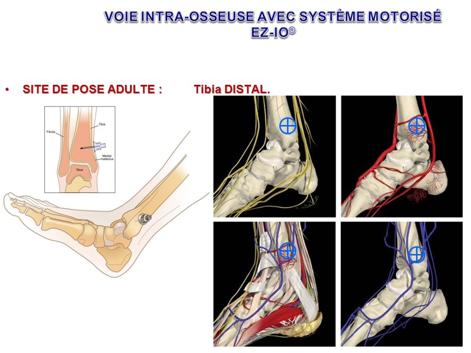 SITE DE POSE ADULTE :Tibia DISTAL.SITE DE POSE ADULTE :Tibia DISTAL.