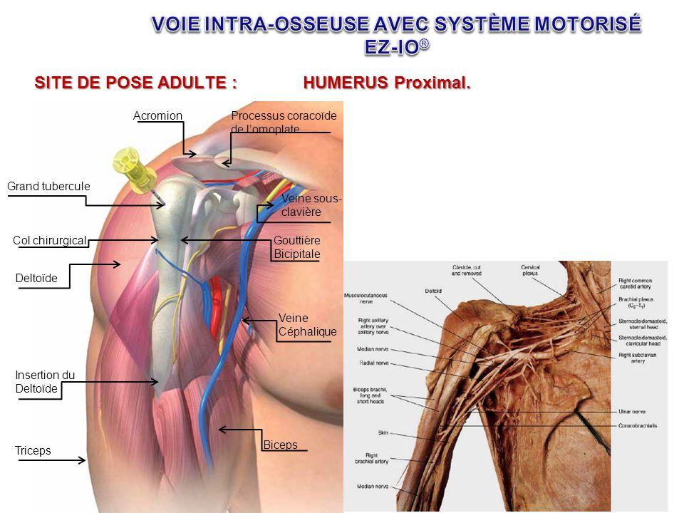 SITE DE POSE ADULTE :HUMERUS Proximal. Grand tubercule Col chirurgical Deltoïde Insertion du Deltoïde Triceps Biceps Veine Céphalique Gouttière Bicipi