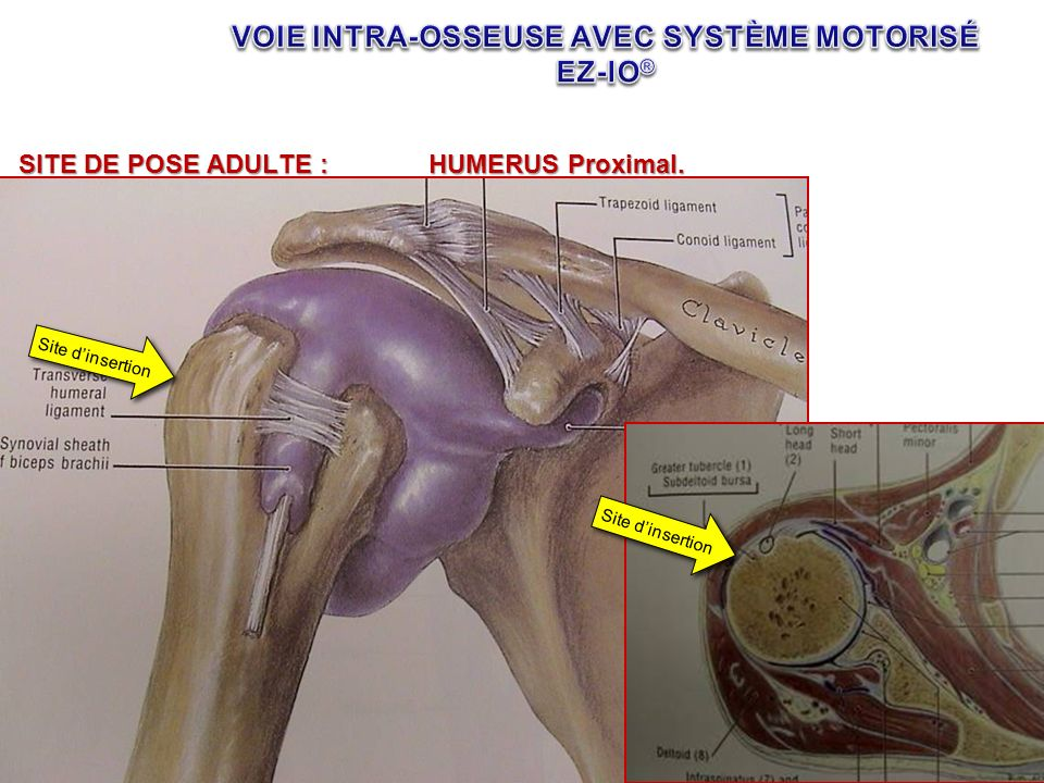 SITE DE POSE ADULTE :HUMERUS Proximal. Site dinsertion