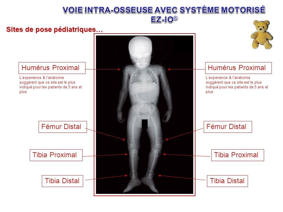 Sites de pose pédiatriques… Humérus Proximal Tibia Proximal Tibia Distal Fémur Distal Lexperience & lanatomie suggèrent que ce site est le plus indiqu