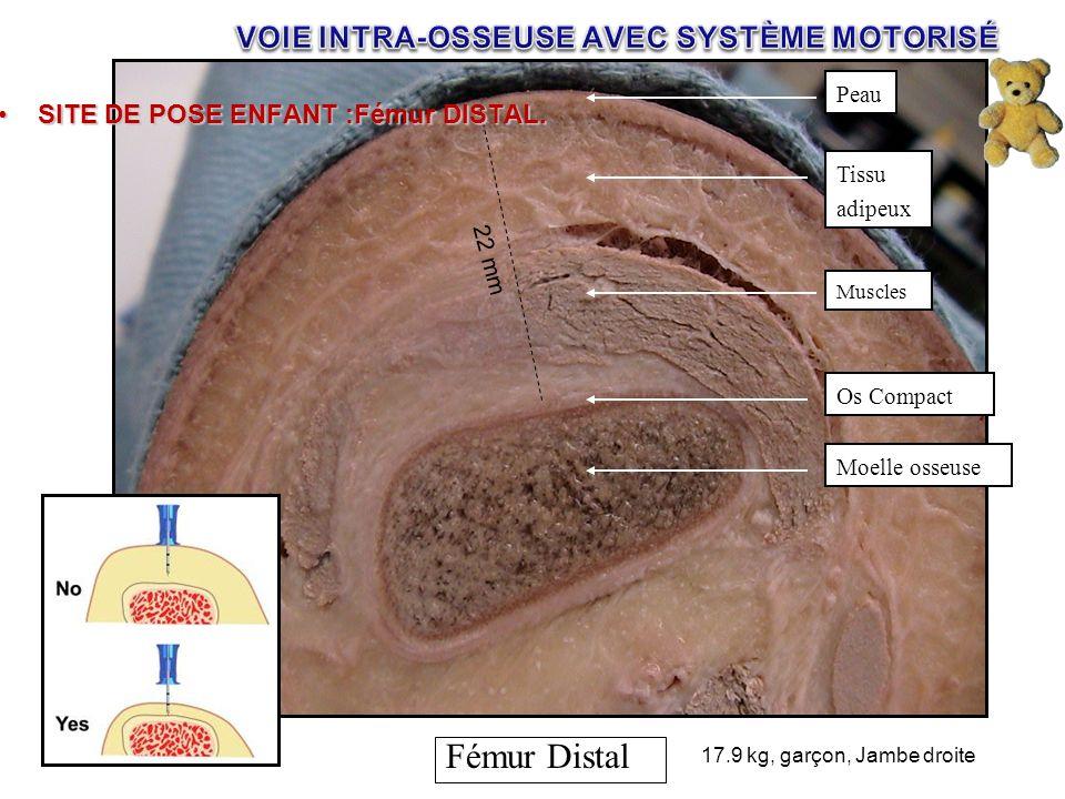 Tibia proximal Tibia distal 17.9 kg, garçon, Jambe droite Fémur Distal Muscles Peau Tissu adipeux Os Compact Moelle osseuse 22 mm SITE DE POSE ENFANT