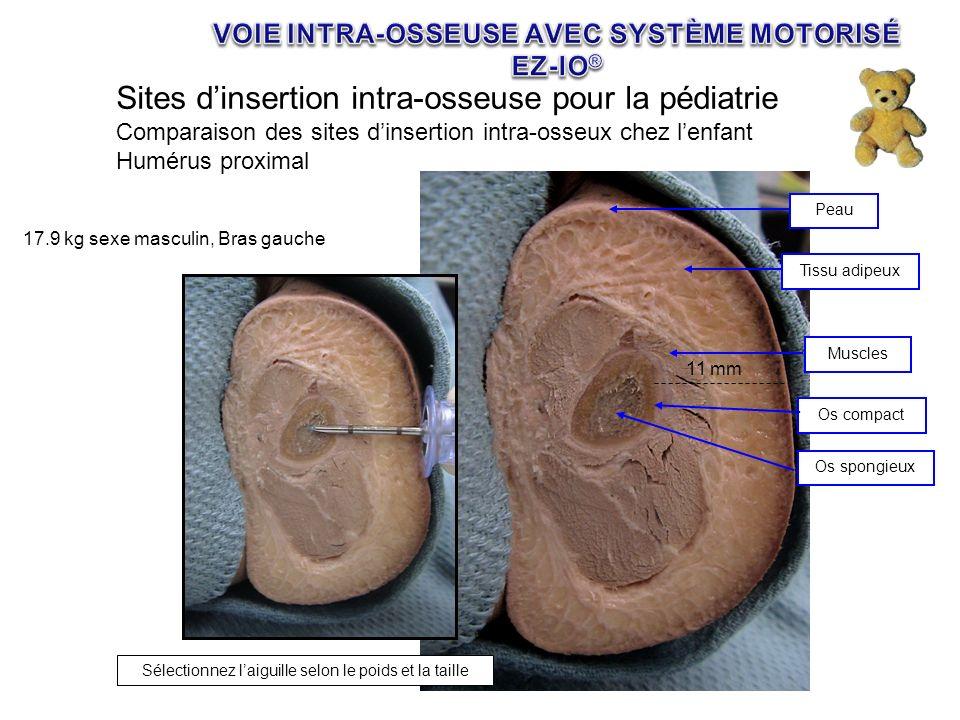 11 mm Muscles Peau Tissu adipeux Os compact Os spongieux 17.9 kg sexe masculin, Bras gauche Sélectionnez laiguille selon le poids et la taille Sites d