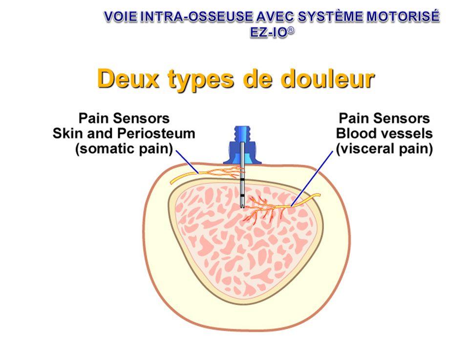 Deux types de douleur