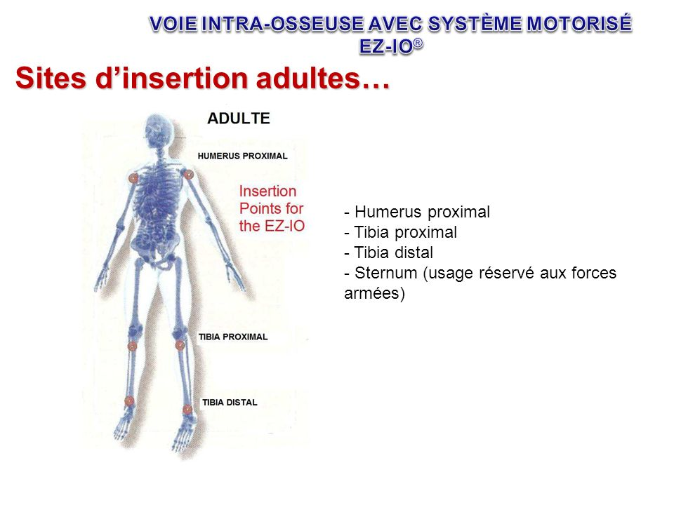 Sites dinsertion adultes… - Humerus proximal - Tibia proximal - Tibia distal - Sternum (usage réservé aux forces armées)