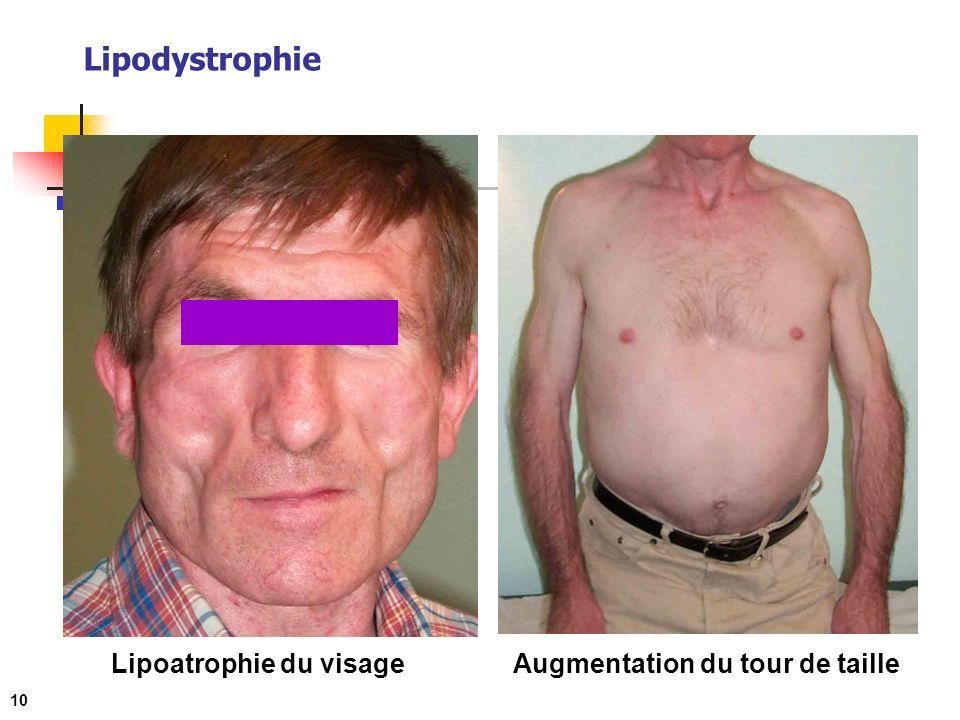 Lipodystrophie 10 Lipoatrophie du visageAugmentation du tour de taille