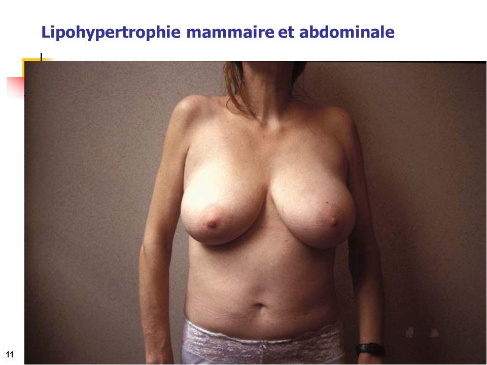 Lipohypertrophie mammaire et abdominale 11