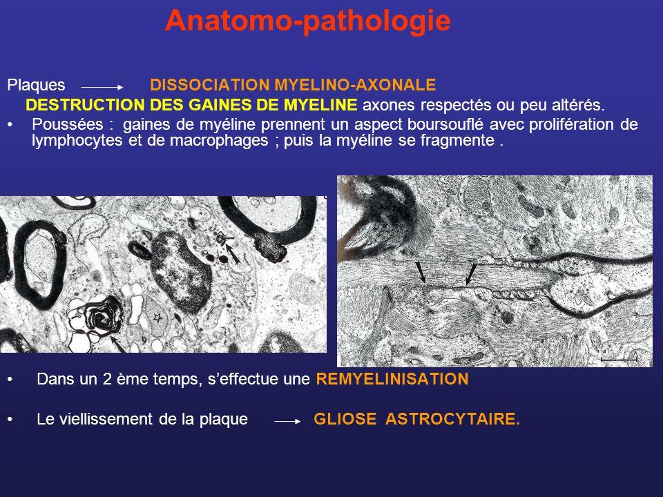 Anatomo-pathologie Plaques DISSOCIATION MYELINO-AXONALE DESTRUCTION DES GAINES DE MYELINE axones respectés ou peu altérés. Poussées : gaines de myélin