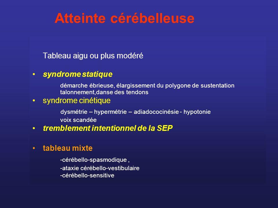 Tableau aigu ou plus modéré syndrome statique démarche ébrieuse, élargissement du polygone de sustentation talonnement,danse des tendons syndrome ciné