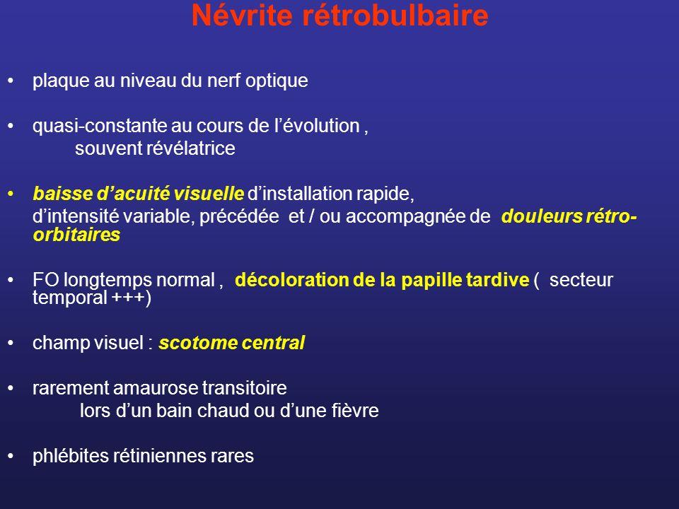 Névrite rétrobulbaire plaque au niveau du nerf optique quasi-constante au cours de lévolution, souvent révélatrice baisse dacuité visuelle dinstallati