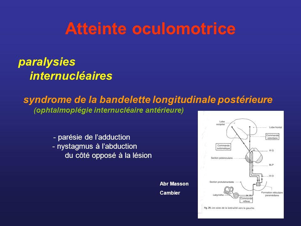 Atteinte oculomotrice paralysies internucléaires syndrome de la bandelette longitudinale postérieure (ophtalmoplégie internucléaire antérieure) - paré