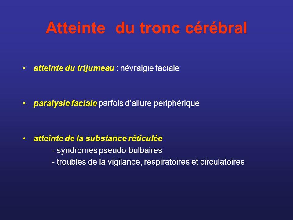Atteinte du tronc cérébral atteinte du trijumeau : névralgie faciale paralysie faciale parfois dallure périphérique atteinte de la substance réticulée