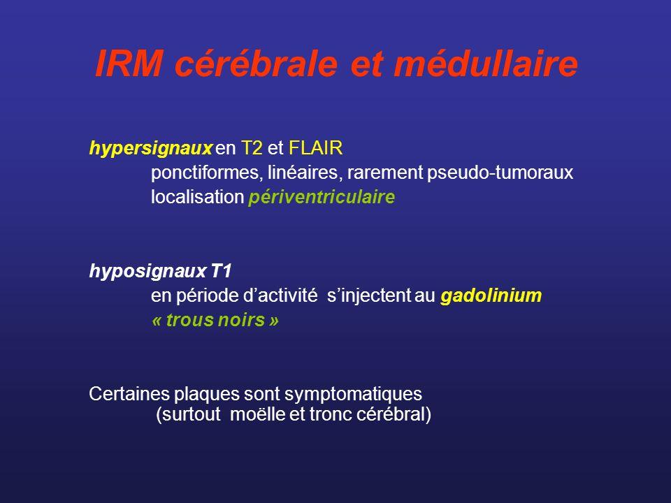 IRM cérébrale et médullaire hypersignaux en T2 et FLAIR ponctiformes, linéaires, rarement pseudo-tumoraux localisation périventriculaire hyposignaux T