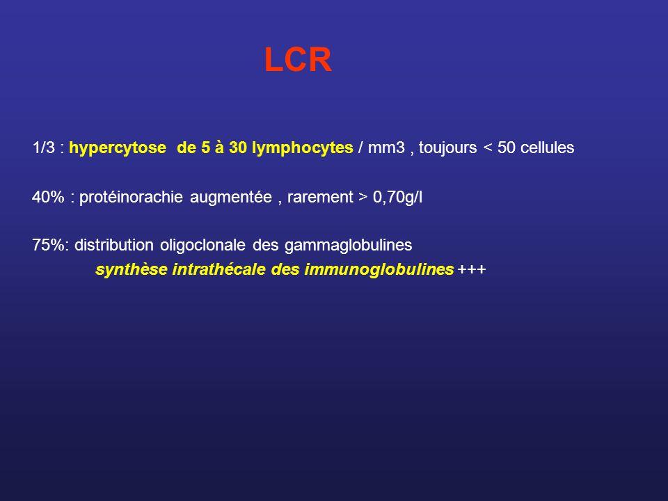 LCR 1/3 : hypercytose de 5 à 30 lymphocytes / mm3, toujours < 50 cellules 40% : protéinorachie augmentée, rarement > 0,70g/l 75%: distribution oligocl