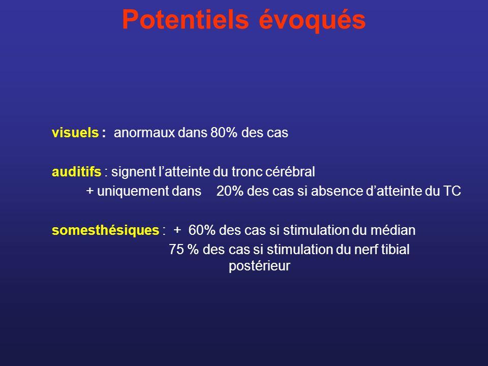 Potentiels évoqués visuels : anormaux dans 80% des cas auditifs : signent latteinte du tronc cérébral + uniquement dans 20% des cas si absence dattein