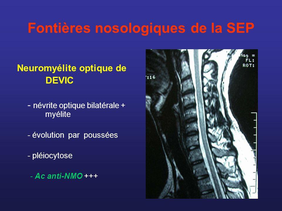 Fontières nosologiques de la SEP Neuromyélite optique de DEVIC - névrite optique bilatérale + myélite - évolution par poussées - pléiocytose - Ac anti