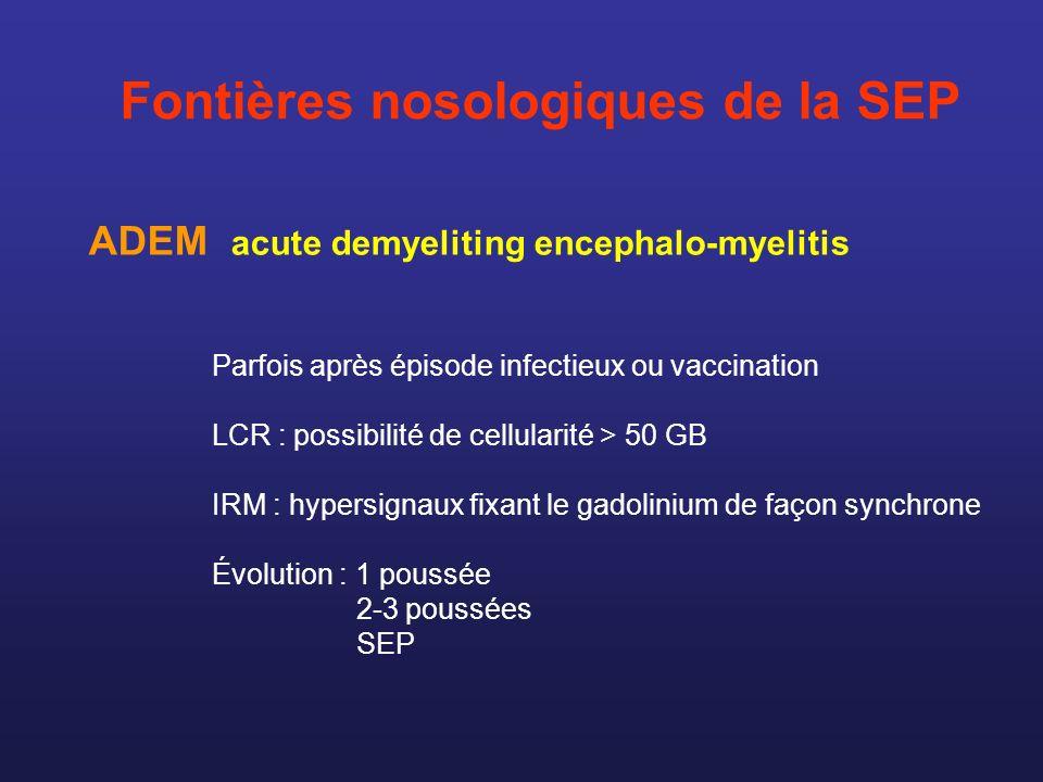 Fontières nosologiques de la SEP Parfois après épisode infectieux ou vaccination LCR : possibilité de cellularité > 50 GB IRM : hypersignaux fixant le