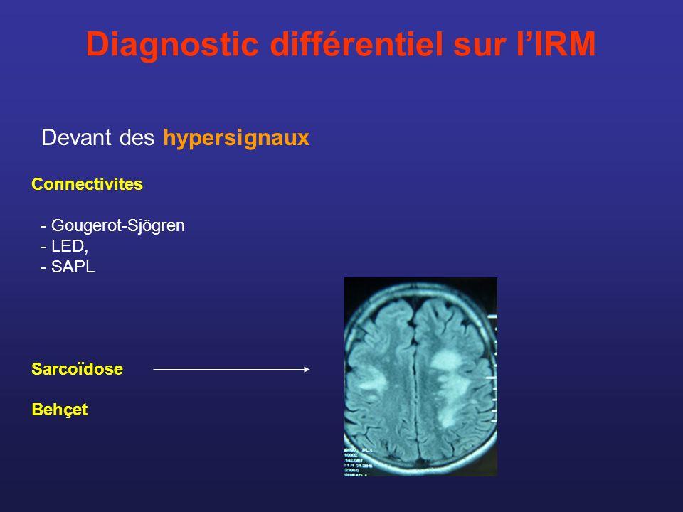Diagnostic différentiel sur lIRM Devant des hypersignaux Connectivites - Gougerot-Sjögren - LED, - SAPL Sarcoïdose Behçet