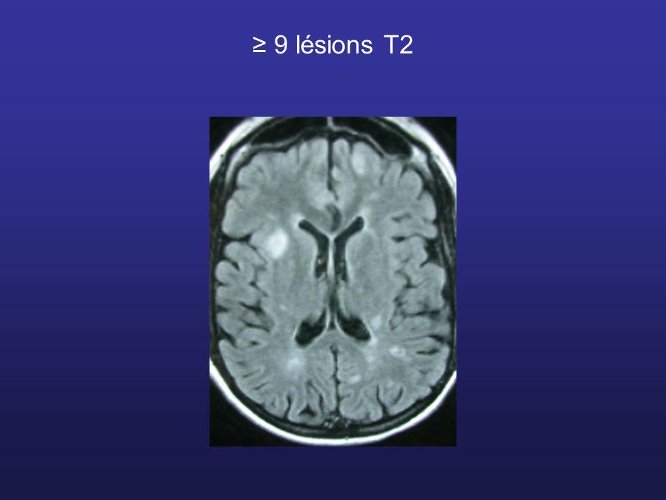9 lésions T2