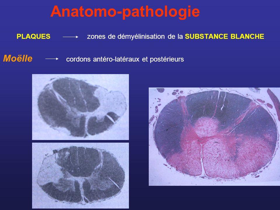 Anatomo-pathologie Encéphale PERIVENTRICULAIRE : corps calleux, sous-cortical centre ovale, calotte du tronc cérébral, hémisphères cérébelleux NERF OPTIQUE les nerfs périphériques sont indemnes Toutes les plaques ne sexpriment pas