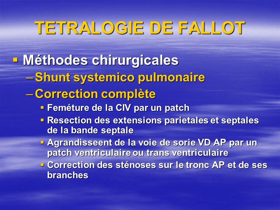 TETRALOGIE DE FALLOT Méthodes chirurgicales Méthodes chirurgicales –Shunt systemico pulmonaire –Correction complète Feméture de la CIV par un patch Fe