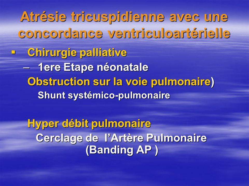 Atrésie tricuspidienne avec une concordance ventriculoartérielle Chirurgie palliative Chirurgie palliative –1ere Etape néonatale Obstruction sur la vo