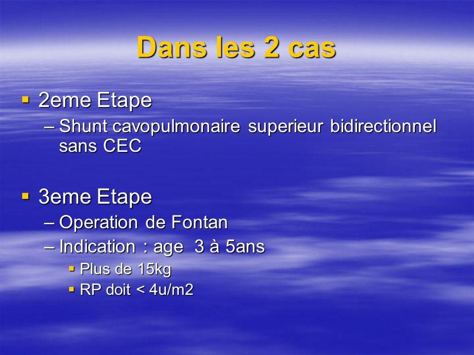Dans les 2 cas 2eme Etape 2eme Etape –Shunt cavopulmonaire superieur bidirectionnel sans CEC 3eme Etape 3eme Etape –Operation de Fontan –Indication :