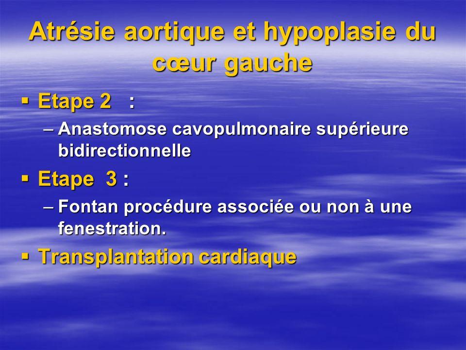 Atrésie aortique et hypoplasie du cœur gauche Etape 2 : Etape 2 : –Anastomose cavopulmonaire supérieure bidirectionnelle Etape 3 : Etape 3 : –Fontan p