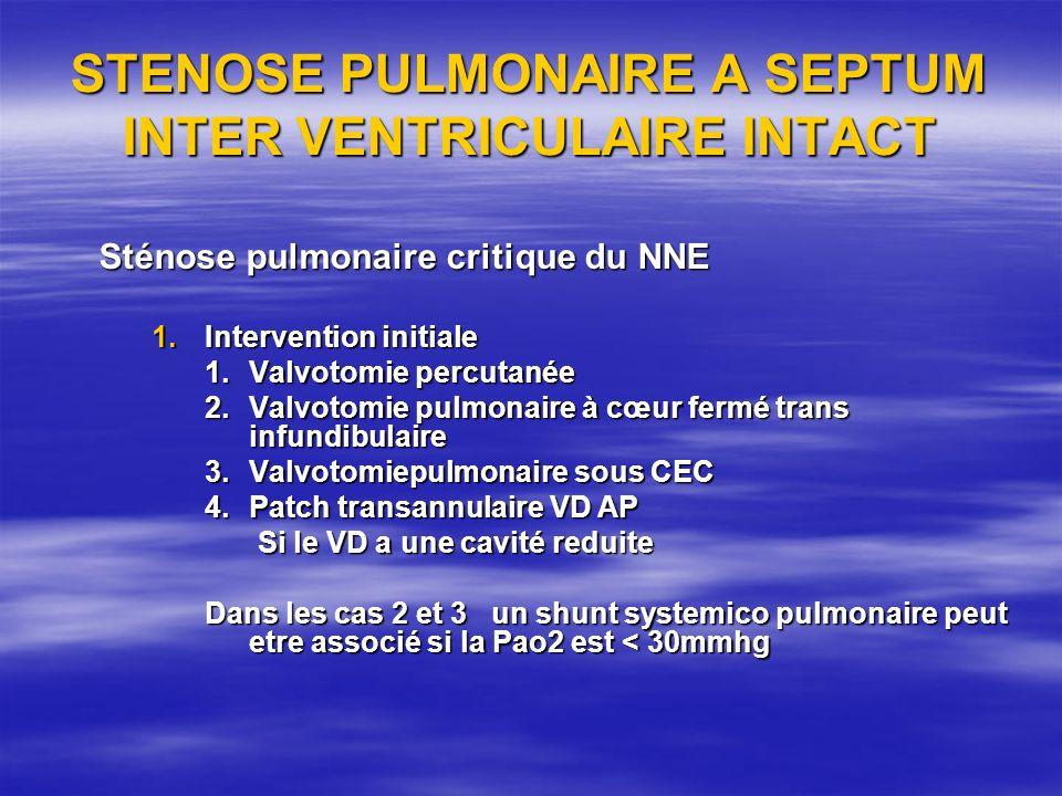 STENOSE PULMONAIRE A SEPTUM INTER VENTRICULAIRE INTACT Sténose pulmonaire critique du NNE 1.Intervention initiale 1.Valvotomie percutanée 2.Valvotomie