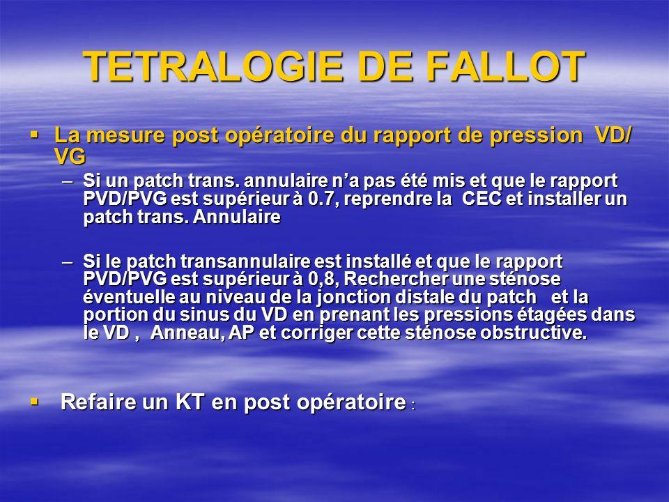 TETRALOGIE DE FALLOT La mesure post opératoire du rapport de pression VD/ VG La mesure post opératoire du rapport de pression VD/ VG –Si un patch tran