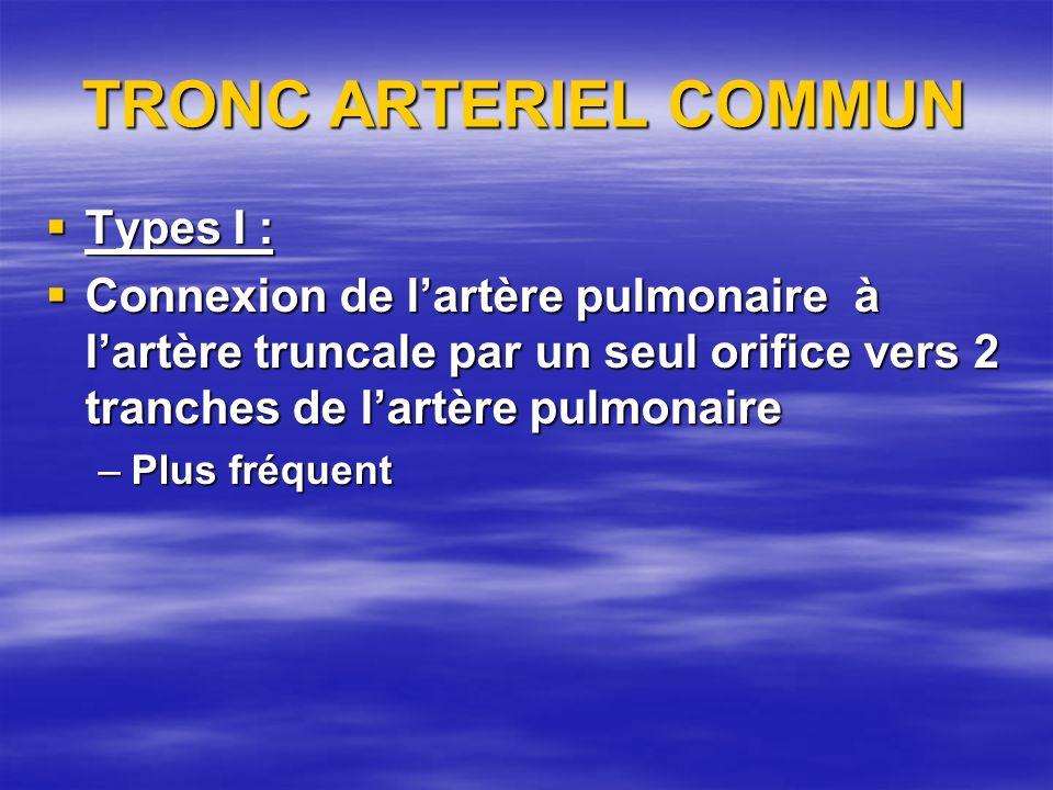 TRONC ARTERIEL COMMUN Types I : Types I : Connexion de lartère pulmonaire à lartère truncale par un seul orifice vers 2 tranches de lartère pulmonaire