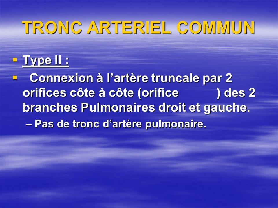 TRONC ARTERIEL COMMUN Type II : Type II : Connexion à lartère truncale par 2 orifices côte à côte (orifice ) des 2 branches Pulmonaires droit et gauch