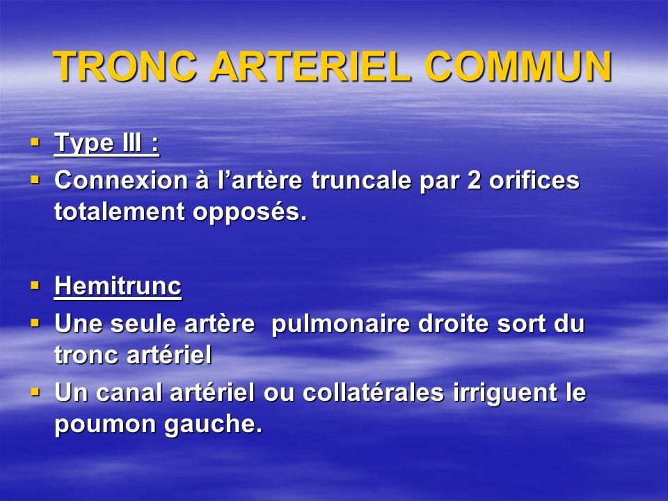 TRONC ARTERIEL COMMUN Type III : Type III : Connexion à lartère truncale par 2 orifices totalement opposés. Connexion à lartère truncale par 2 orifice