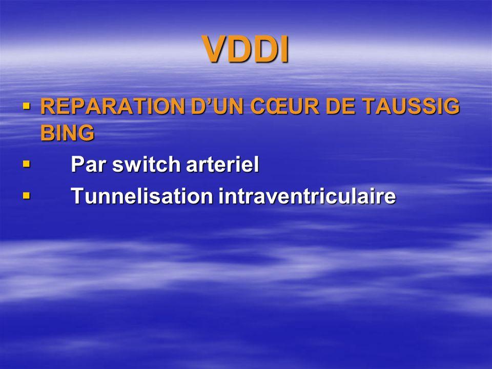 VDDI REPARATION DUN CŒUR DE TAUSSIG BING REPARATION DUN CŒUR DE TAUSSIG BING Par switch arteriel Par switch arteriel Tunnelisation intraventriculaire