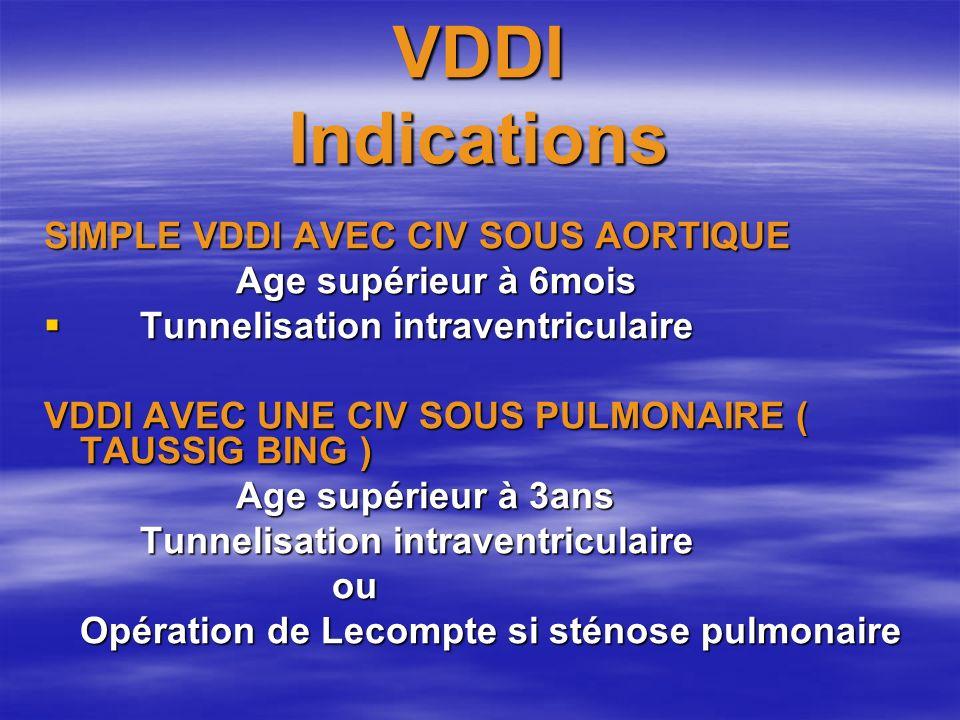VDDI Indications SIMPLE VDDI AVEC CIV SOUS AORTIQUE Age supérieur à 6mois Tunnelisation intraventriculaire Tunnelisation intraventriculaire VDDI AVEC