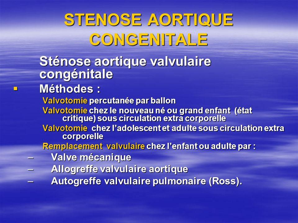 STENOSE AORTIQUE CONGENITALE Sténose aortique valvulaire congénitale Méthodes : Méthodes : Valvotomie percutanée par ballon Valvotomie chez le nouveau