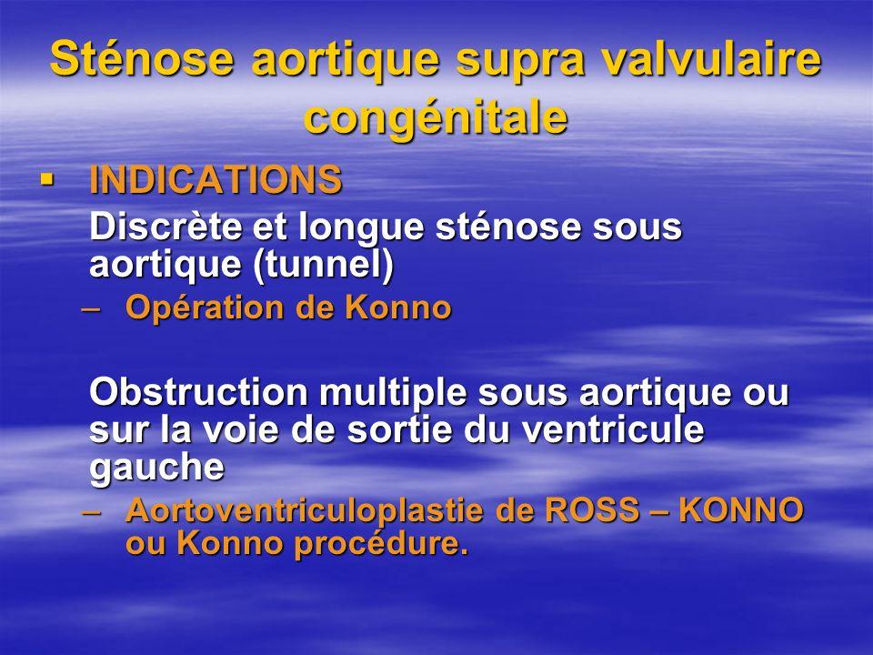 Sténose aortique supra valvulaire congénitale INDICATIONS INDICATIONS Discrète et longue sténose sous aortique (tunnel) –Opération de Konno Obstructio