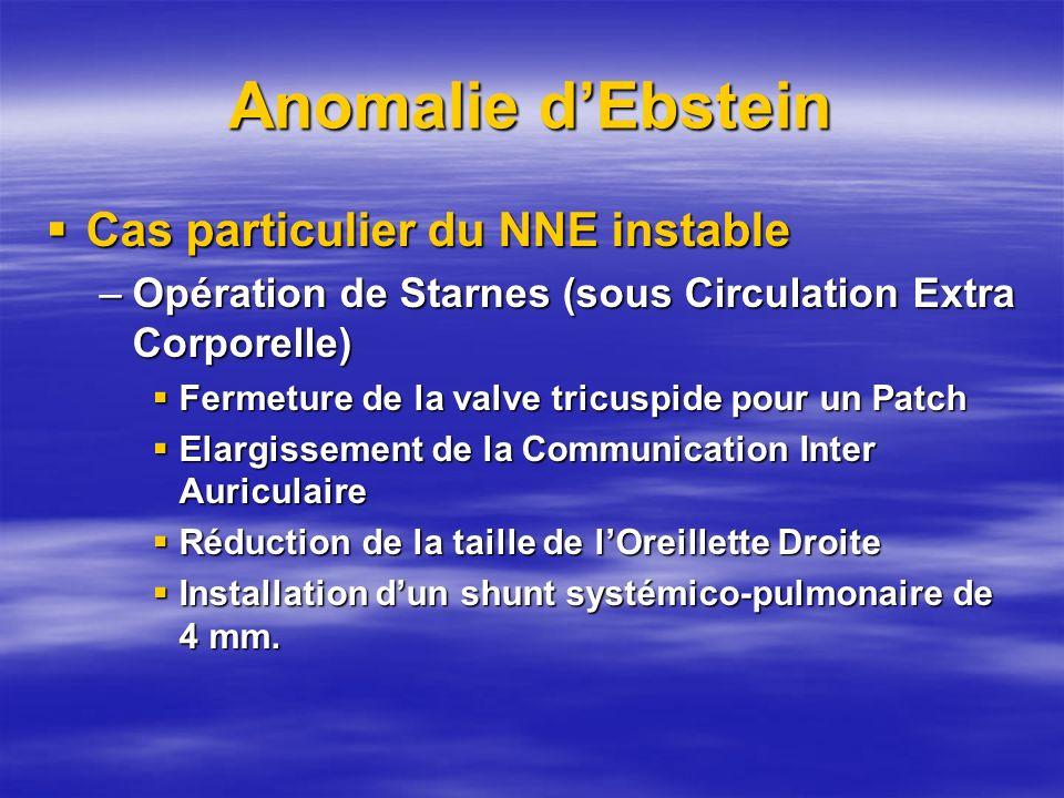 Anomalie dEbstein Cas particulier du NNE instable Cas particulier du NNE instable –Opération de Starnes (sous Circulation Extra Corporelle) Fermeture