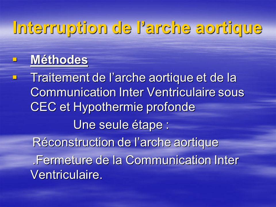 Interruption de larche aortique Méthodes Méthodes Traitement de larche aortique et de la Communication Inter Ventriculaire sous CEC et Hypothermie pro