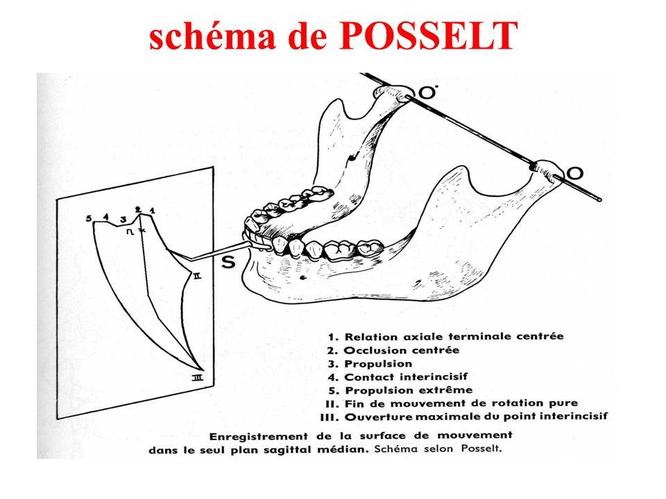 schéma de POSSELT